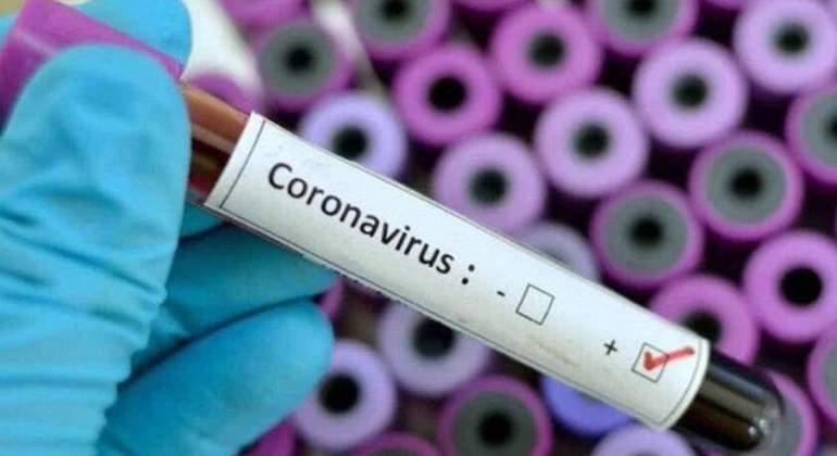 CORONAVIRUS: 7 PERSONAS SE MANTIENEN ACTIVAS EN CAÑETE
